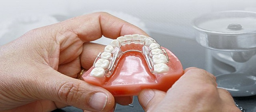 How 3D Printing is Transforming Dental Industry